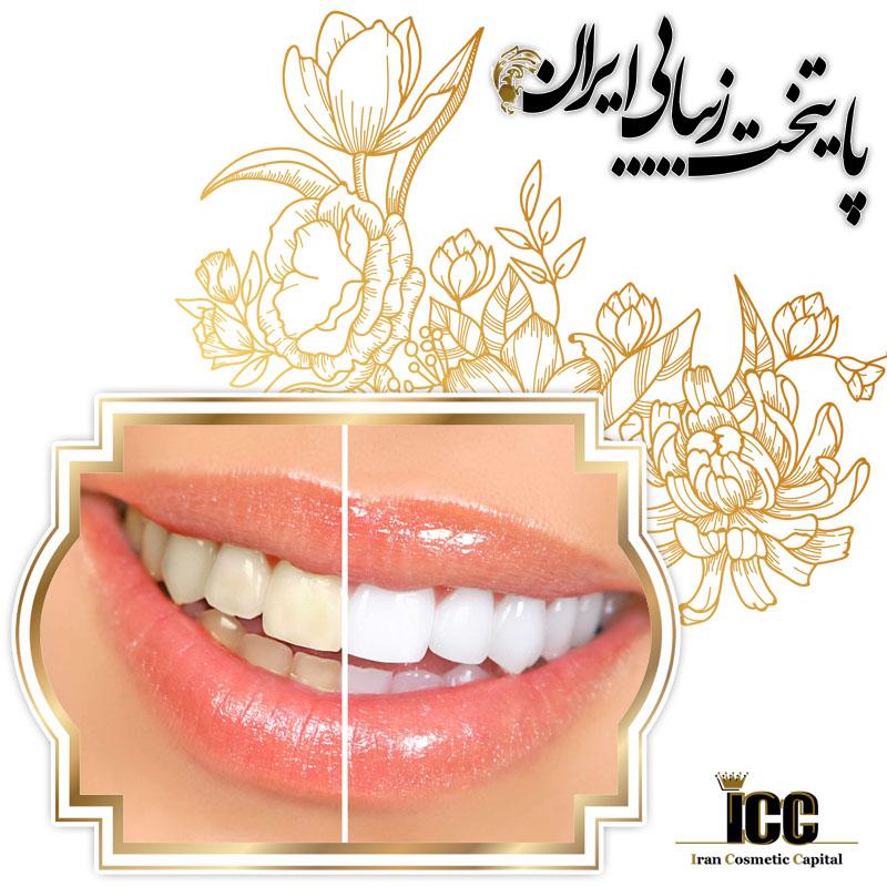 زیبایی و کامپوزیت دندان در پایتخت زیبایی ایران