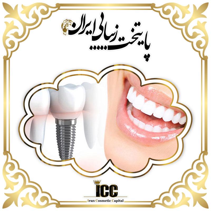 ایمپلنت دندان چیست و چه مراحلی دارد؟