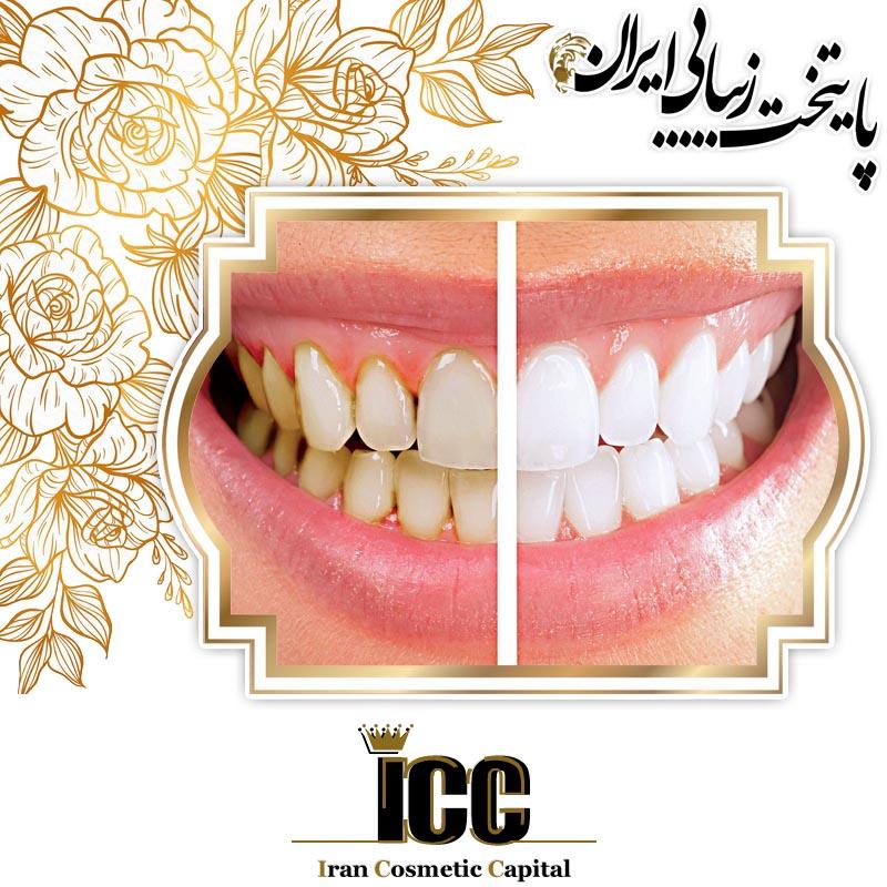 آیا می دانید لمینت دندان چیست؟