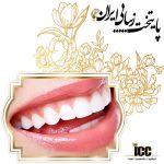 انواع روش های ترمیم زیبایی دندان جلو