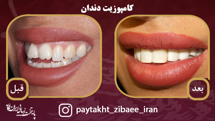 نمونه کار کامپوزیت دندان توسط متخصصین کلینیک زیبایی ایران/ فرق کامپوزیت و لمینیت