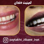 نمونه کار لمینیت در کلینیک پایتخت زیبایی ایران