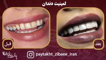 فرق کامپوزیت و لمینیت دندان چیست؟