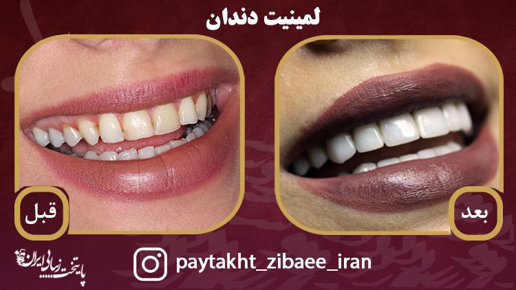 نمونه کار لمینیت در کلینیک پایتخت زیبایی ایران/ فرق کامپوزیت و لمینیت