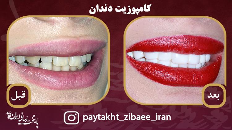 نمونه کار کامپوزیت دندان در کلینیک پایتخت زیبایی ایران/ فرق کامپوزیت و لمینیت