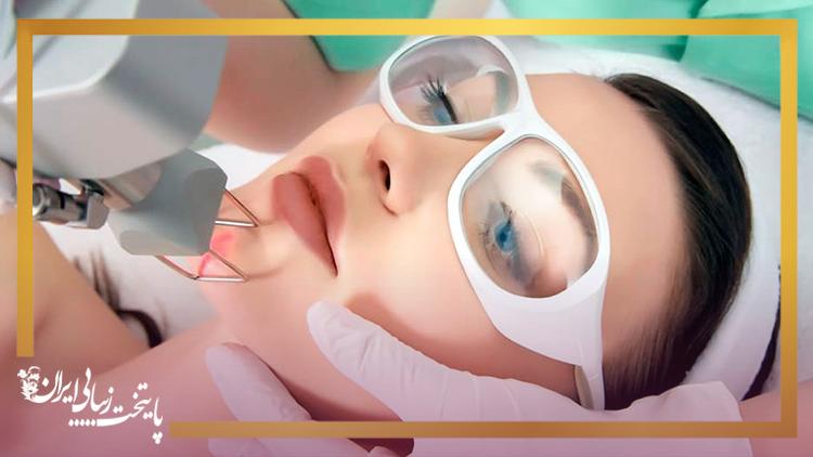 درمان ترک پوست و جای جوش و لک با لیزر