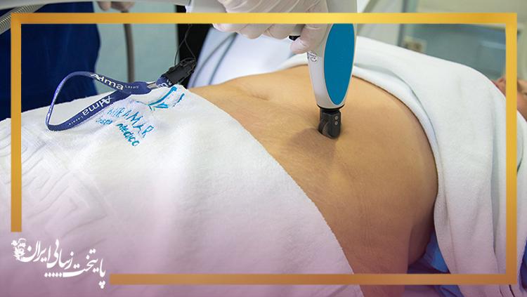 درمان ترک پوست با لیزر