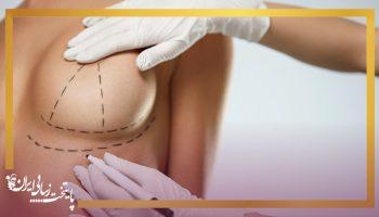 لیفت سینه چیست و به چه روش هایی انجام می شود؟
