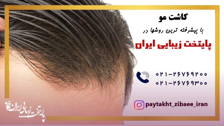 کاشت موی طبیعی یا پیوند مو در کلینیک پایتخت زیبایی ایران