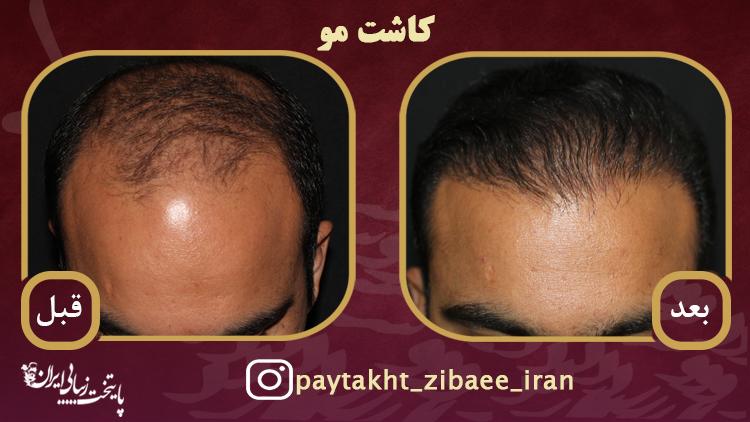 کاشت موی طبیعی به روش FUT در کلینیک icc