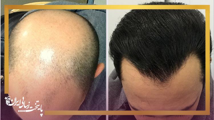 کاشت موی طبیعی؛ بهترین راه حل برای کسانی که از ریزش موی شدید رنج می برند