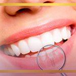 ایمپلنت دندان جلو چیست و برای چه کسانی کاربرد دارد؟