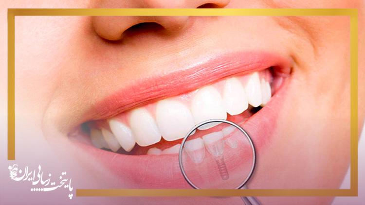 ایمپلنت دندان جلو چیست؟