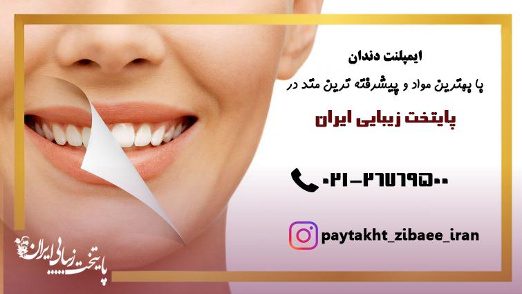 ایمپلنت دندان جلو با پیشرفته ترین کتد در پایتخت زیبایی ایران